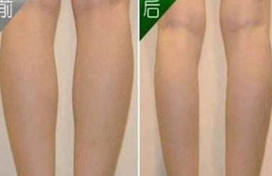 抽脂瘦腿好吗