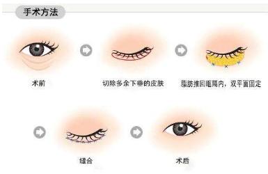上海祛大眼袋医院哪个好