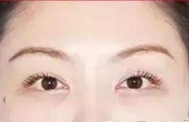 三个月能修复双眼皮吗