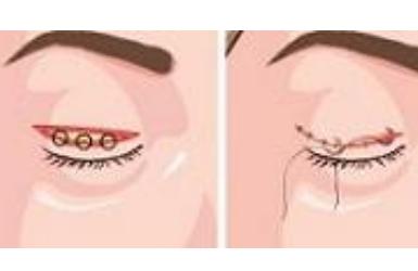 韩式双眼皮全切多久恢复