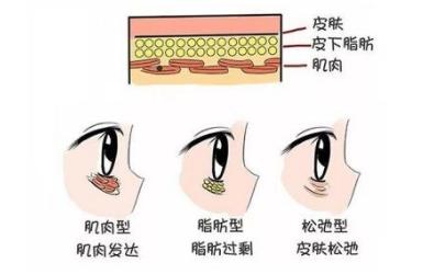 眼袋是怎么形成的