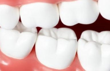 大连牙齿矫正哪里好