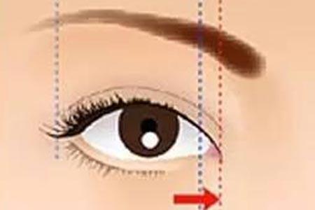 开内眼角手术需要多少钱