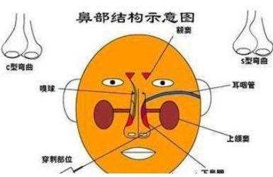 鼻综合对鼻炎有影响吗
