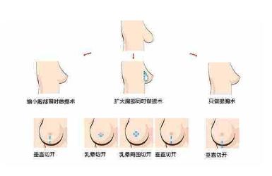 哺乳胸下垂能恢复吗