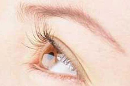 割双眼皮要多久时间才能恢复自然