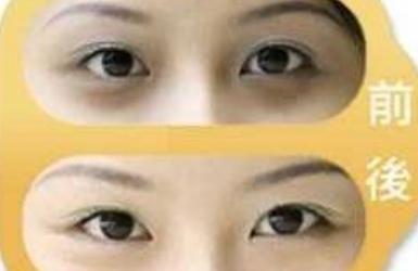 美容去黑眼圈多少钱