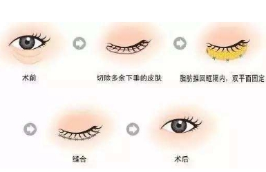 上海吸脂去眼袋价格是多少