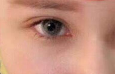 日式双眼皮多少钱