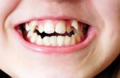 牙齿矫正拔智齿吗