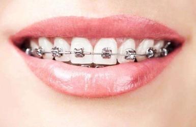 不锈钢牙套多少钱