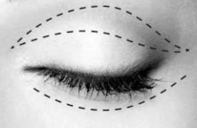 双眼皮者上眼皮松弛做什么手术好?