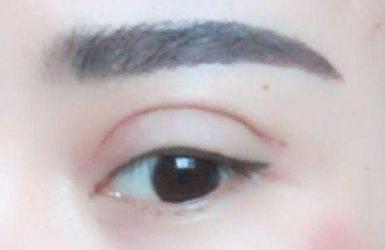 双眼皮埋线失败了怎么办