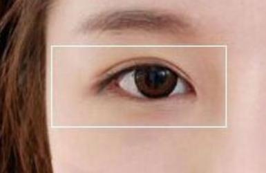 韩式双眼皮恢复图