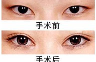 上海日式双眼皮手术多少钱