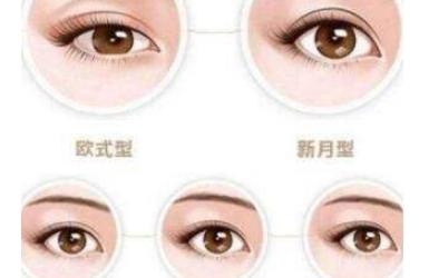 纳米双眼皮价格