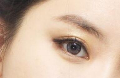 在上海割双眼皮多少钱