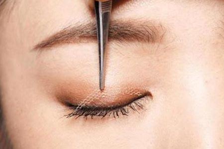 埋线双眼皮手术的效果怎么样啊
