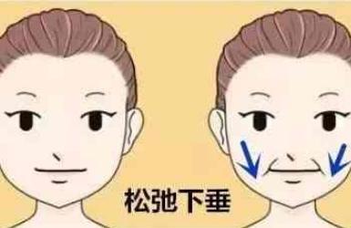 面部下垂怎么办