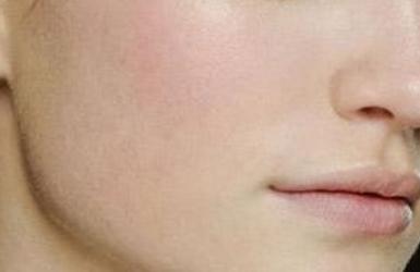 面部咬肌大没有轮廓感怎么办