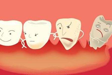 成年人做牙齿矫正价格是多少钱