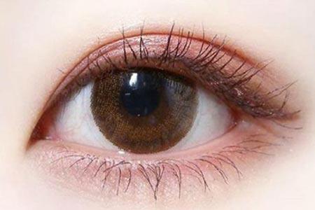 激光去除黑眼圈大概是多少钱
