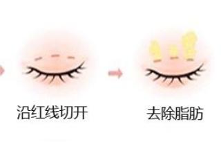 韩式双眼皮会怎么样