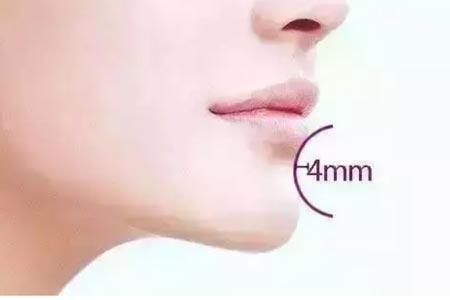 注射玻尿酸可以丰下巴吗