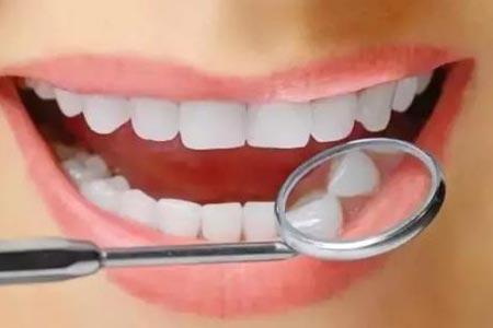 美容冠矫正牙齿效果自然吗