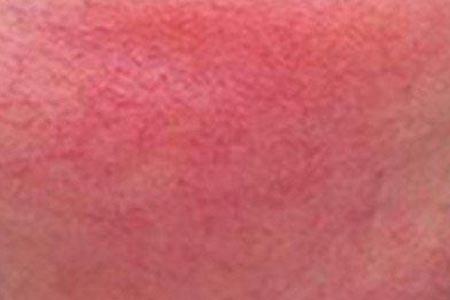脸上有很严重的红血丝怎么办
