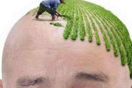 头顶掉发很厉害怎么办呀