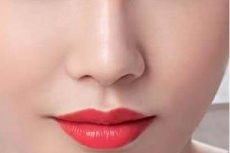 注射玻尿酸隆鼻整形术后效果怎么样