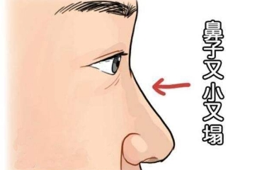 鼻子很塌几乎没有鼻梁怎么办