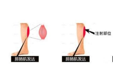 打瘦腿针需要注意什么