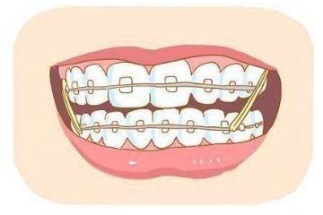 美莱牙齿矫正好不好