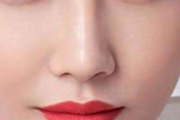 隆鼻后遗症
