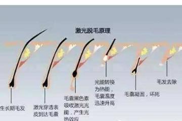 哺乳期为什么不能激光脱毛