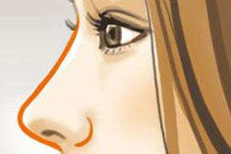注射玻尿酸隆鼻安全吗