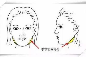 改脸型手术大概需要多少钱