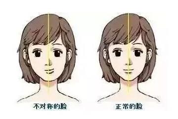 改脸型需要多久才能恢复