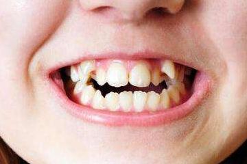 人有几颗门牙