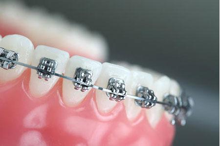 上海做牙齿矫正价格大概多少钱