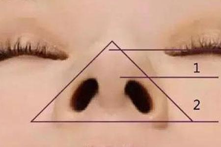 鼻孔肥大做缩小手术安全吗