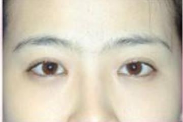 割完双眼皮15天的照片