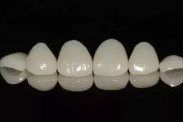 牙贴面有什么后遗症吗