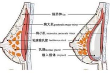 假体隆胸修复术后需要恢复多久