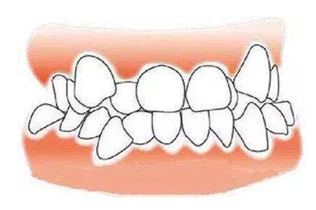 成年人牙齿不整齐做隐形矫正效果怎么样