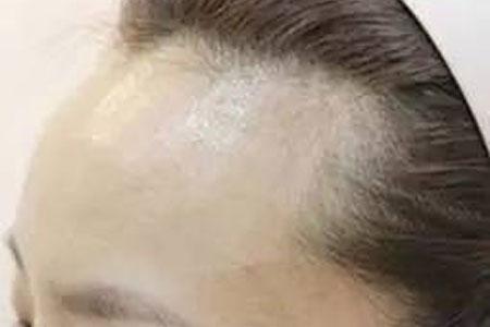 发际线很高做植发手术价格很贵吗