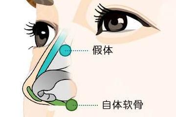 整鼻子有风险吗