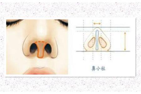 做鼻小柱延长手术大约需要多少钱